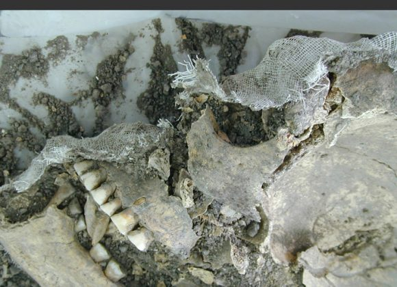 Reconstrucción de cráneo